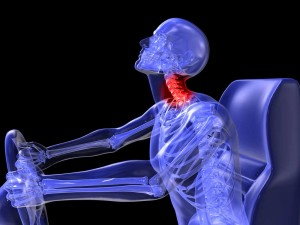 Personal-Injury-Overview